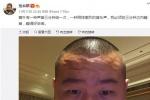 岳云鹏发自拍 网友受到惊吓:美颜软件卸载了?