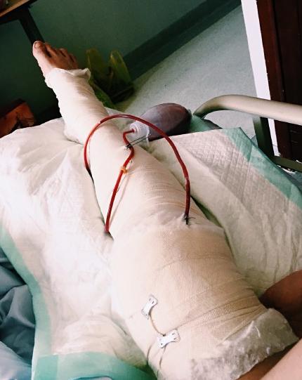 霍尊晒照拄拐杖着地膝盖手术后面色苍白显憔悴