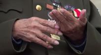 抗美援朝老兵张计发讲述断指背后的故事